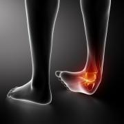 נקע ברגל וכאבי הליכה